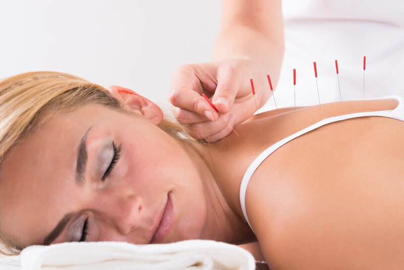Woman Receiving Acupunture Treatment